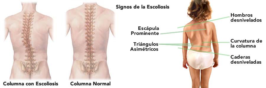 escoliosis-2016-spanish