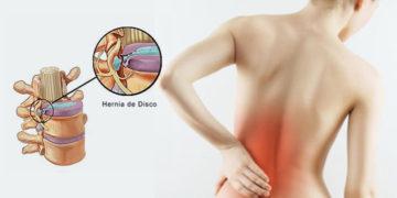 Dolor lumbar y hernia discal