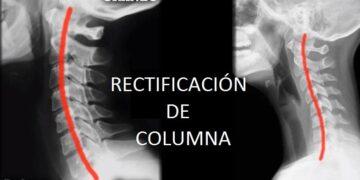 La rectificación de la lordosis cervical o la postura de la cabeza adelantada